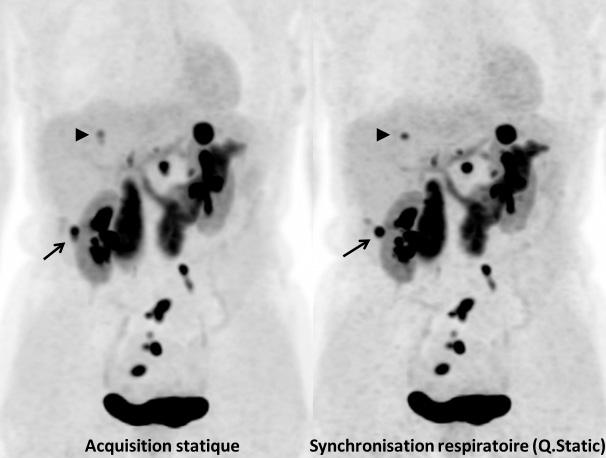Figure 5. Tumeur neuro-endocrine différenciée du grêle. Bilan de réévaluation par TEP/IRM à la Fluoro-DOPA. Comparaison des acquisitions sans et avec synchronisation respiratoire. L'examen montre des lésions tumorales ganglionnaires pelviennes, ainsi que plusieurs lésions hépatiques. La lésion hépatique indiquée par une flèche apparaît plus nette sur l'image synchronisée, avec moins de flou. La lésion indiquée par une tête de flèche, nettement visible sur l'image synchronisée, apparaît presque comme deux lésions contiguës sur l'image non synchronisée. La synchronisation respiratoire a pour avantages de diminuer le flou dans les images, d'améliorer le recalage avec l'IRM, et d'améliorer la quantification de la fixation par le SUV