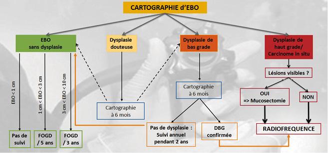 Figure 1. Place de la radiofréquence au sein de l'algorithme de prise en charge de l'endobrachyoesophage selon l'ESGE statement en 2017