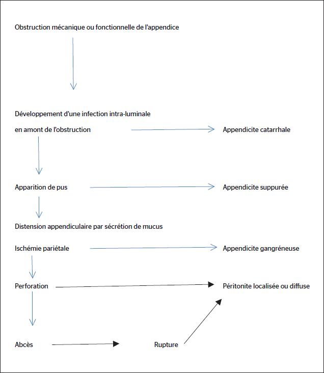 Figure 2. Physiopathologie classique de l'appendicite aiguë