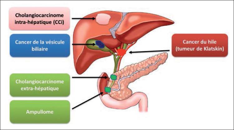Figure 1. Les tumeurs des voies biliaires