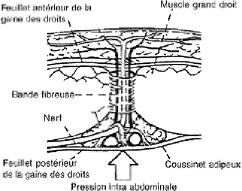 Figure 4. Mécanisme d'une douleur pariétale par conflit du rameau antérieur d'un nerf cutané abdominal au niveau de sa gaine fibreuse au bord du muscle grand droit de l'abdomen [2]
