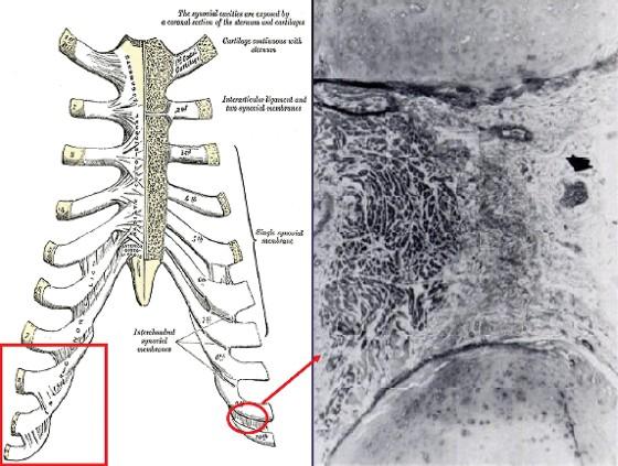 Figure 5. Mécanisme du syndrome de Cyriax