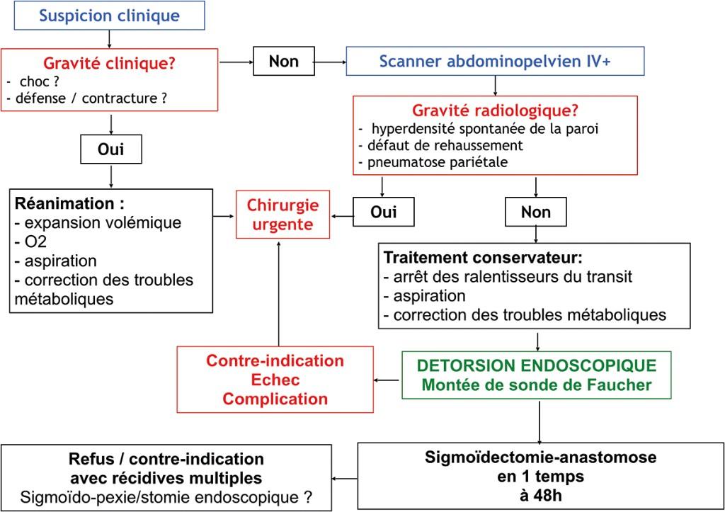 Algorithme 4. Proposition d'algorithme pour la prise en charge d'un volvulus du sigmoïde