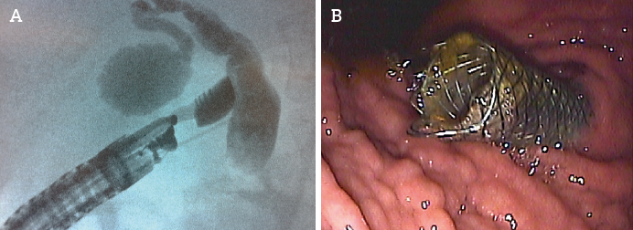 Figure 1 : Choledocoduodenostomie