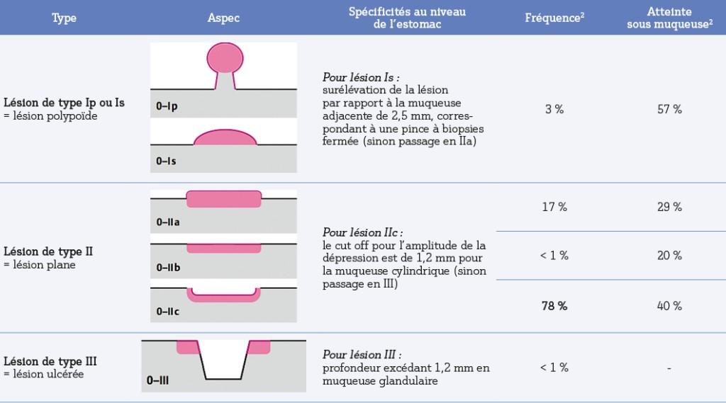 Tableau 2. Classification de Paris et spécificités au niveau de l'estomac