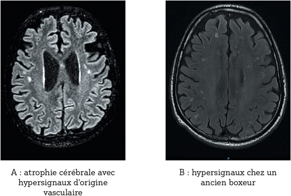 exemples d'IRM permettant de redresser le diagnostic d'EH minime : A : atrophie cérébrale avec hypersignaux en faveur d'une démence vasculaire ; B : hypersignaux chez un ancien boxeur