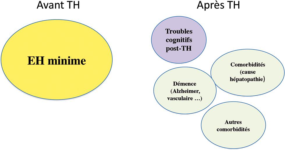 troubles cognitifs avant et après transplantation hépatique