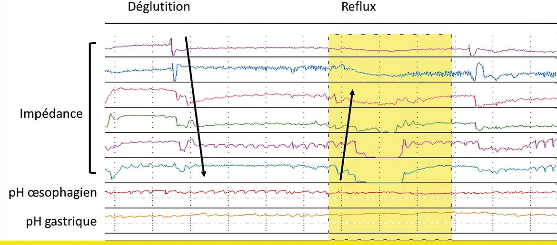 Figure 2 : Tracé d'impédancemétrie œsophagienne sous traitement