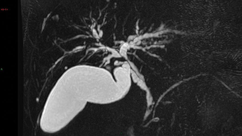 Cholangio-IRM d'une CSP. Sténoses et dilatations multiples des voies biliaires intra et extra-hépatiques