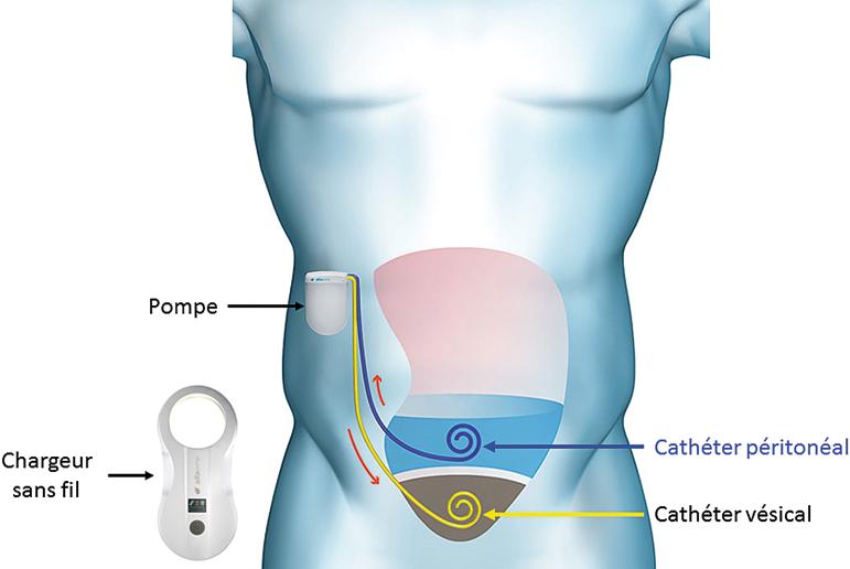 Figure 3 : Schéma représentant le principe du dispositif Alfapump®