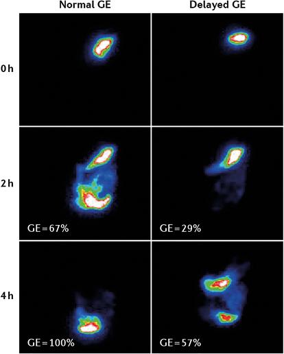 Figure 2 : Exemples de vidanges gastriques évaluées par scintigraphie gastrique (14)