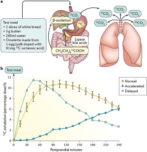 Figure 3 : Vidange gastrique par test respiratoire à l'acide octanoïque marqué au 13C (14)