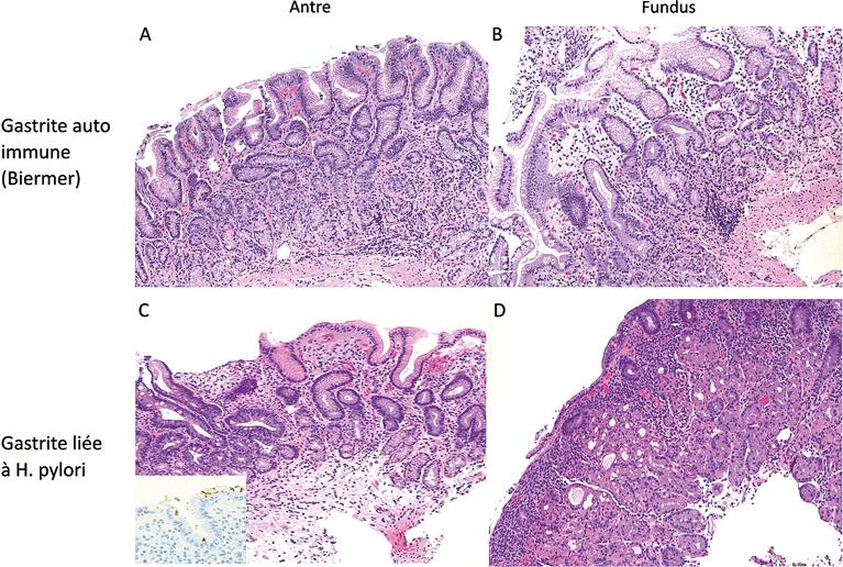 Figure 4 : Biopsie gastrique chez un patient atteint d'une maladie de Crohn :
