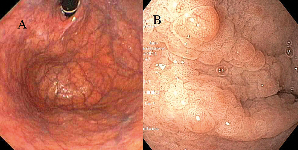 Figure 2 : Deux aspects endoscopiques de muqueuse fundique en cas de maladie de Biermer