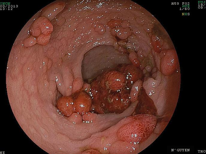 Figure 1 : polypose colique non opérée
