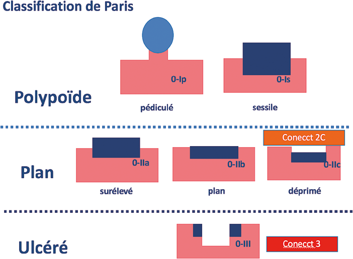 Figure 2 : Classification de l'aspect macroscopique des lésions de Paris