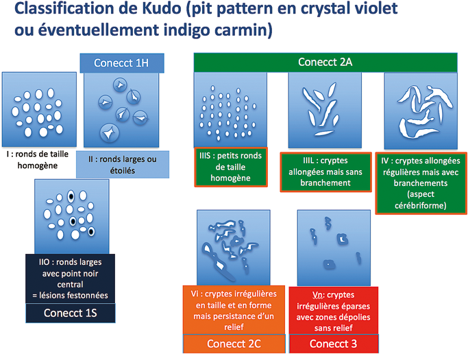 Figure 4 : Classification du pattern muqueux de Kudo