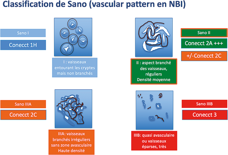 Figure 5 : Classification du pattern vasculaire de Sano