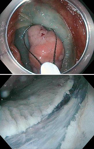 Figure 2 : Examen de la zone de résection après mucosectomie à l'anse chaude