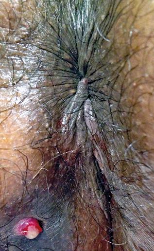Figure 2 : Orifice secondaire suintant de fistule