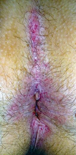 Figure 4 : Candidose