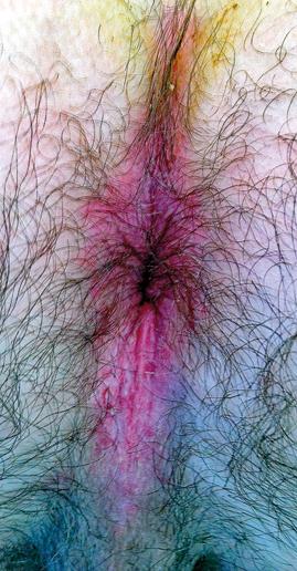 Figure 6 : Psoriasis