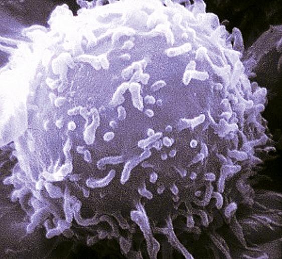 Figure 1 : Photo du serial killer → Virus HPV (wanted)
