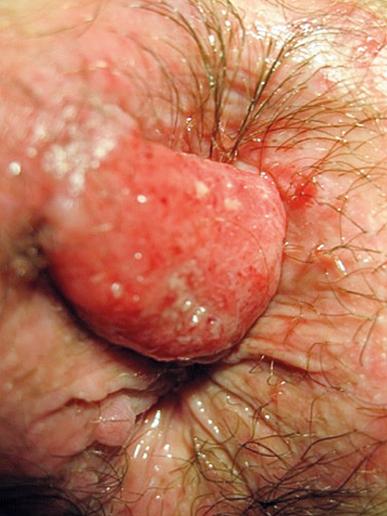 Figure 4 : Carcinome épidermoïde de l'anus
