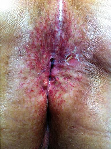 Figure 5 : Dermite radique (quasiment systématique après radiothérapie) avec sténose anale responsable