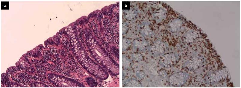 Biopsies collique montrant une augmentation du nombre de lymphocytes intra-épithéliaux et une inflammation du chorion