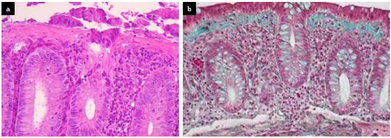 Biopsie colique montrant un épaississement collagène de la membrane basale épithéliale et une inflammation du chorion