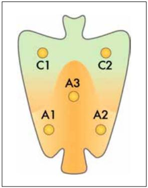 Biopsies gastrique