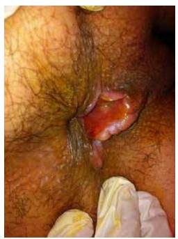 Chancre syphilitique