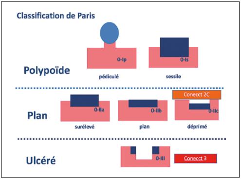 Classification de Paris