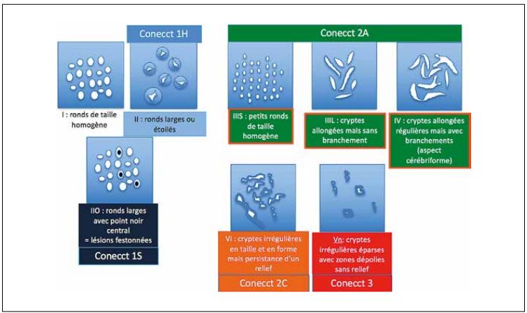 Classification du pattern muqueux de Kudo