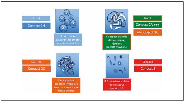Classification du pattern vasculaire de Sano