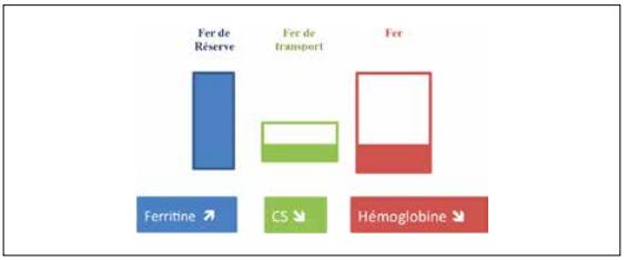 L'inflammation stimule la synthèse de l'hepcidine avec blocage de la ferroportine, blocage de l'absorption intestinale du fer et séquestration du fer dans les réserves aboutissant à une diminution de l'érythropoïèse