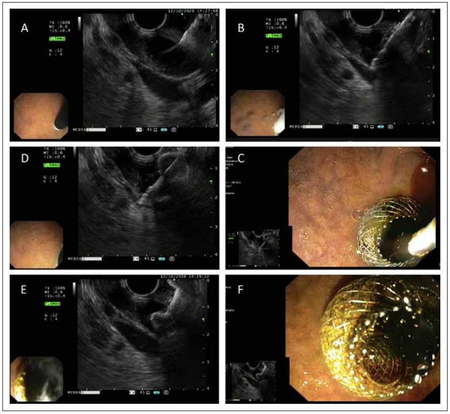 Mise en place d'une prothèse d'apposition pat voie échoendoscopie - cholédocoduodénostomie