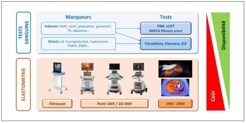 Test non-invasifs de fibrose hépatique