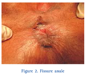 thrombose hemorroidaire incision