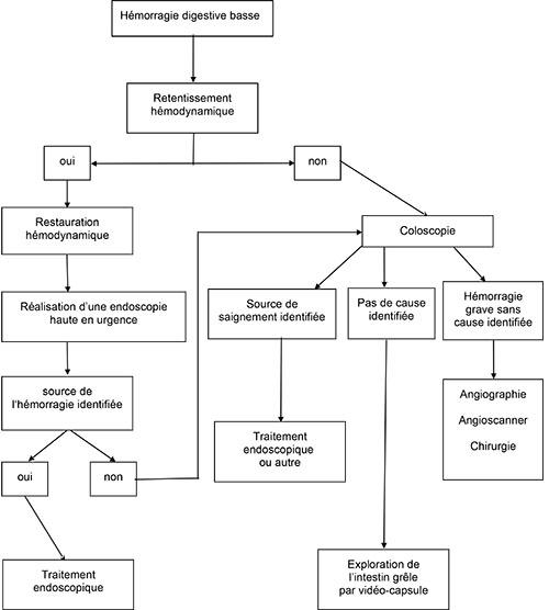 algorithme de prise en charge d'une hémorragie digestive