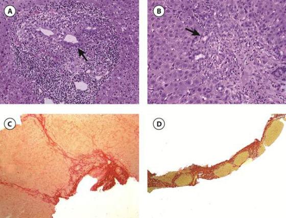 Les 4 stades histologiques de la CBP selon la classification de Scheuer
