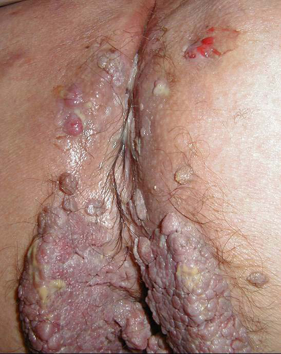 Photographie n°4: Tumeur de Buschke Lowenstein