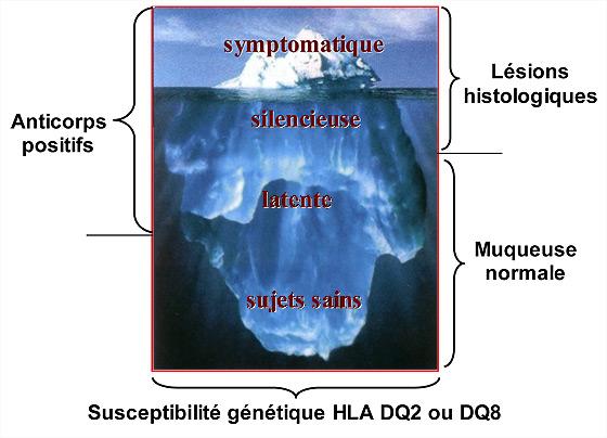 Figure 2 : Le modèle de l'iceberg