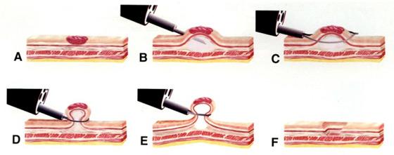 Figure 1 : technique de la mucosectomie