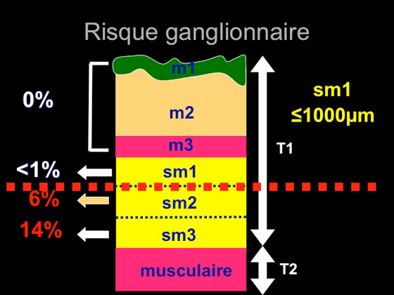 Figure 11 : risque ganglionnaire en fonction de l'invasion en profondeur
