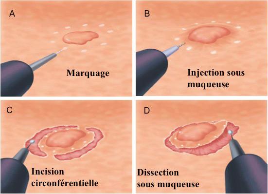 Figure 2 : technique de la dissection sous muqueuse