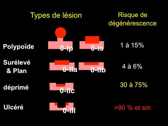 Figure 4 : classification de Paris et risque de dégénérescence
