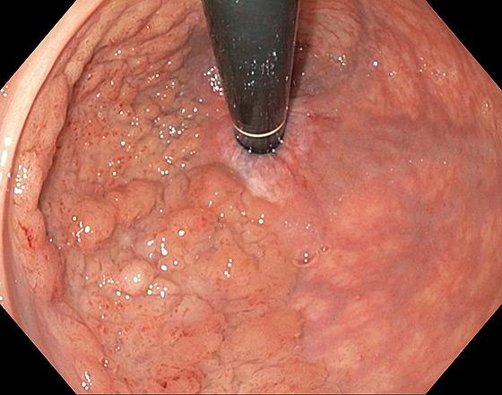 Photo 1 : LST granulaire homogène du bas rectum, pit pattern IV : lésion non suspecte  de dégénérescence traitable par mucosectomie