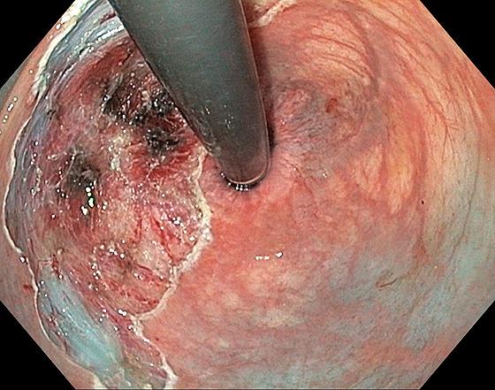 Photo 2 : site après mucosectomie en fragments